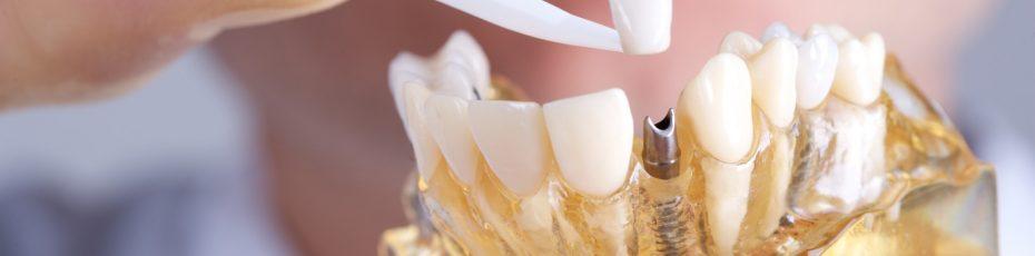 are-dental-implants-worth-it