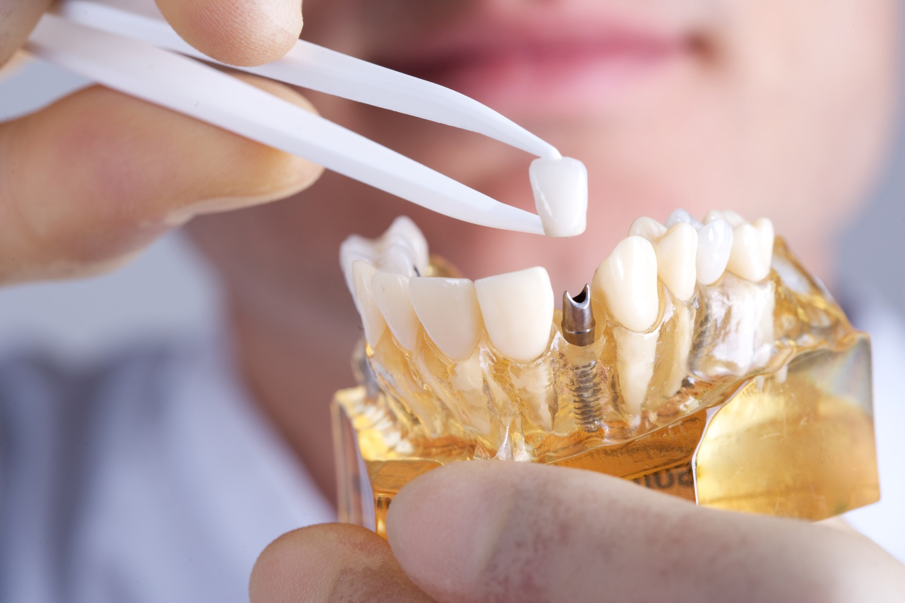 are-dental-implants-worth-it