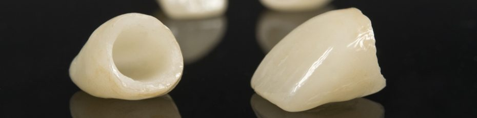 pros-and-cons-of-dental-crowns