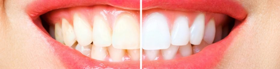 advantages-of-professional-teeth-whitening