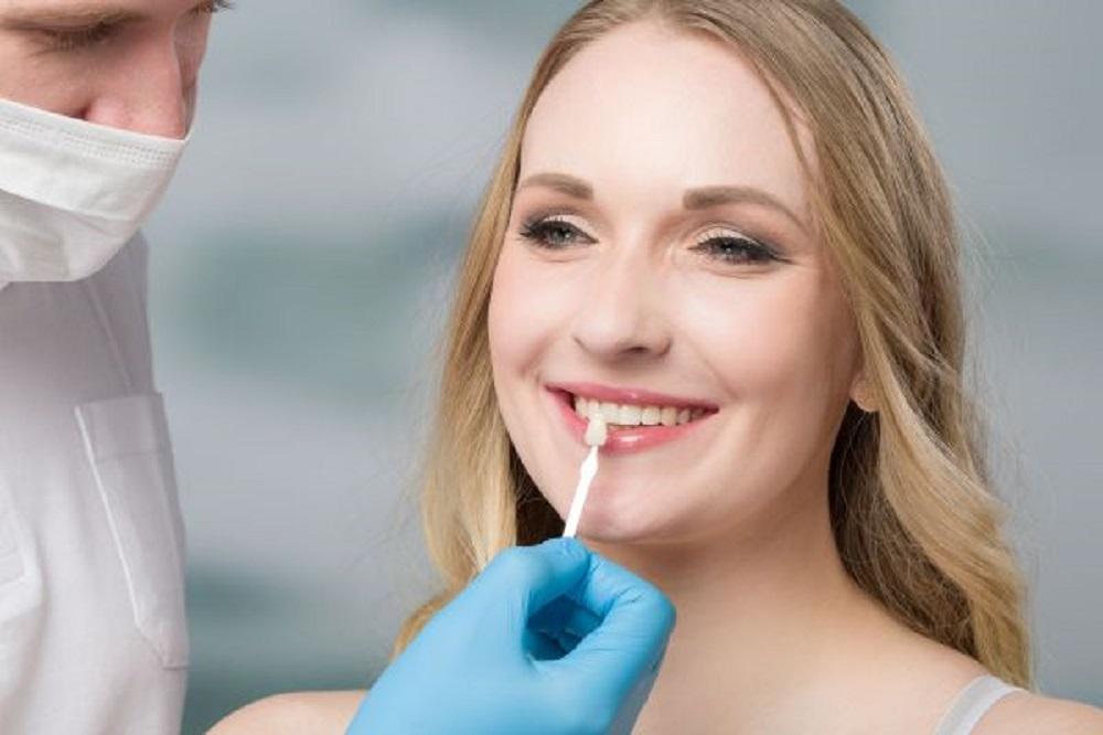 Your Guide To Dental Veneers